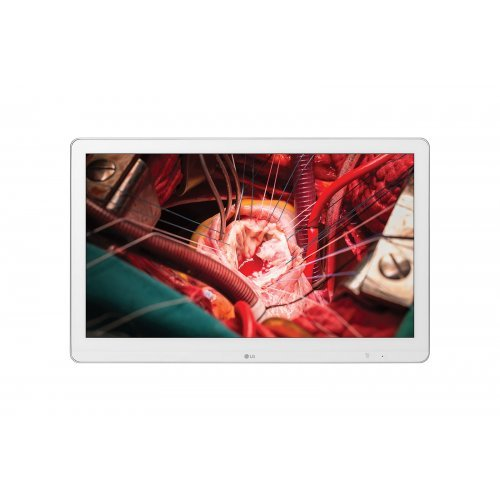 """Монитор- хирургически LG 27"""" 27HK510S-W (снимка 1)"""